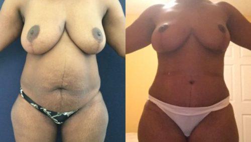 breast lift colombia 245-1-min