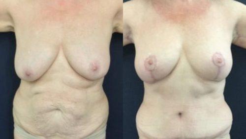 breast lift colombia 246-1-min