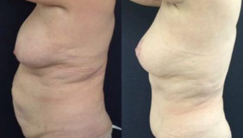 breast lift colombia 246-3-min