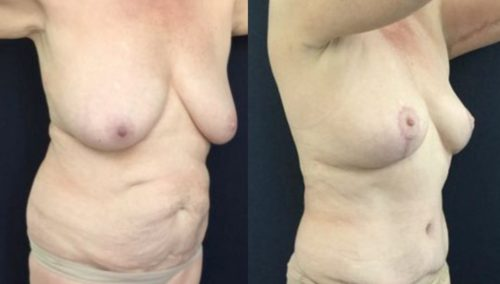 breast lift colombia 246-4-min