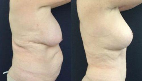 breast lift colombia 246-5-min