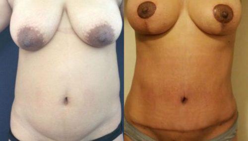 breast lift colombia 247-1-min