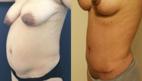 breast lift colombia 247-2-min