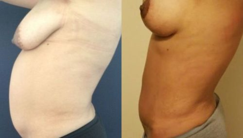 breast lift colombia 247-3-min