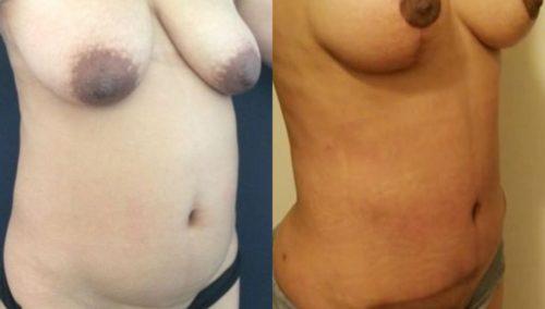 breast lift colombia 247-4-min
