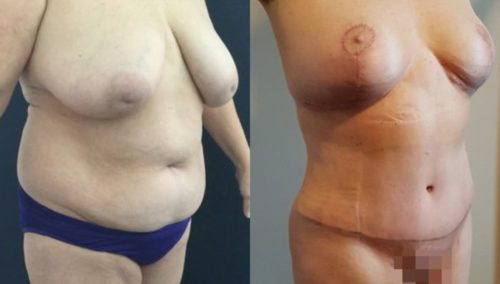 breast lift colombia 252-3-min