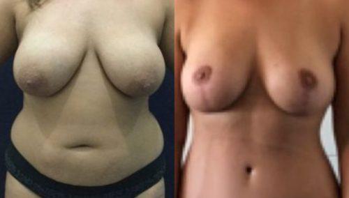 breast lift colombia 271-1-min
