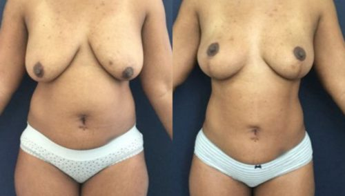 breast lift colombia 273-1-min