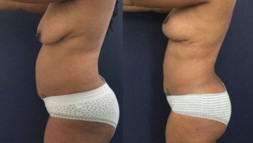 breast lift colombia 273-2-min