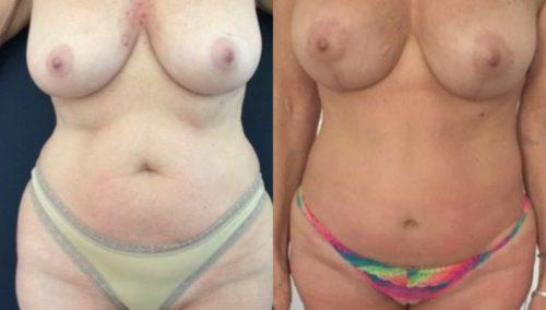 breast lift colombia 274-1-min