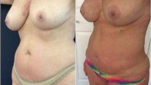breast lift colombia 274-2-min
