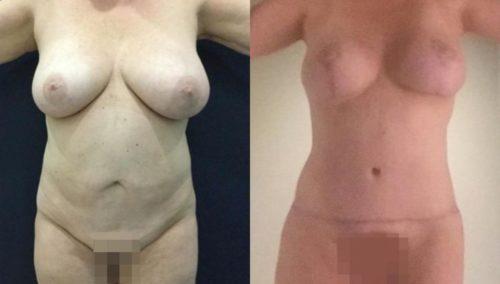 breast lift colombia 282-1-min