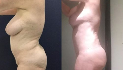 breast lift colombia 282-2-min