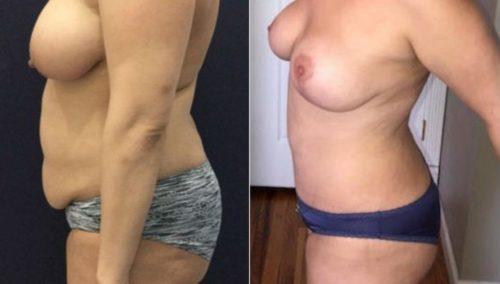 breast lift colombia 288-3-min
