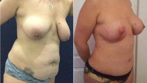 breast lift colombia 288-4-min