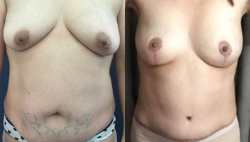 breast lift colombia 293-1-min