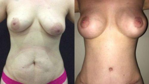 breast lift colombia 297 -1-min