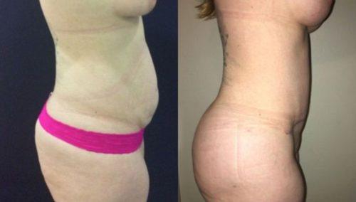 breast lift colombia 297 -3 (1)-min