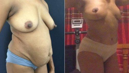breast lift colombia 299-4-min