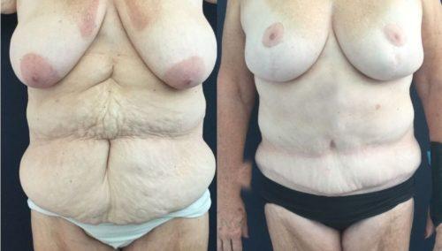 breast lift colombia 322-1-min