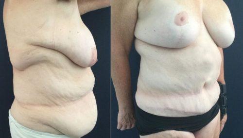 breast lift colombia 322-3-min