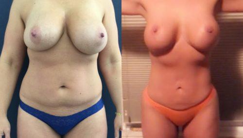 breast lift colombia 327 - 1-min