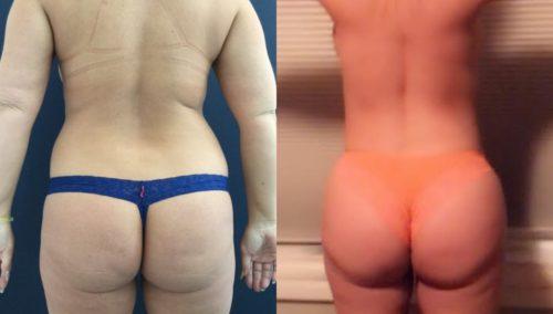breast lift colombia 327 - 4-min