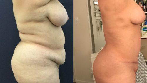 breast lift colombia 334-3-min