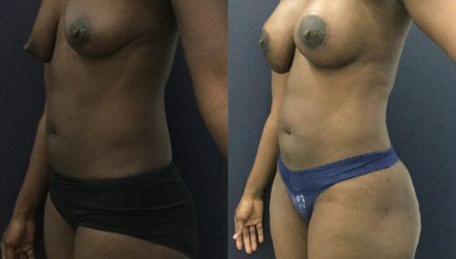 breast lift colombia 343-1-min