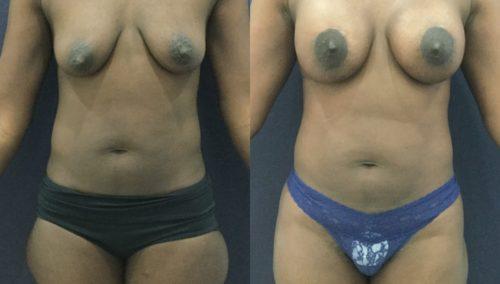 breast lift colombia 343 - 1-min