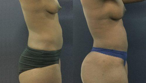 breast lift colombia 343-2-min