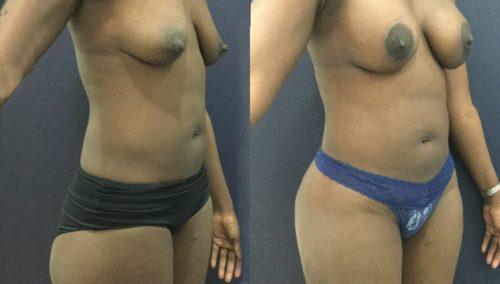 breast lift colombia 343-3-min