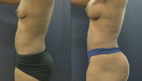 breast lift colombia 343 - 3-min