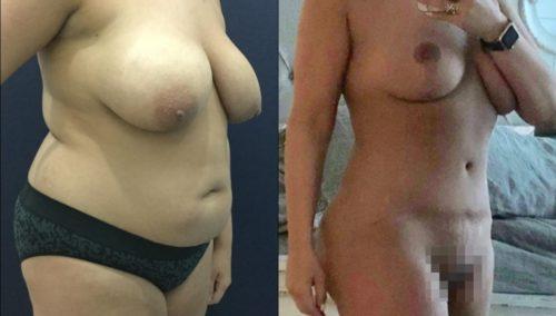 breast lift colombia 349-1-min
