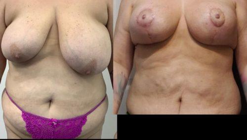 breast lift colombia 351-1-min