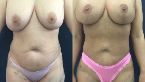 breast lift colombia 358 - 1-min