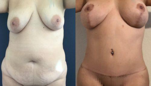 breast lift colombia 364-1-min