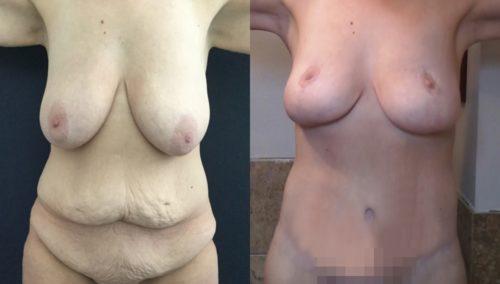 breast lift colombia 389-1-min