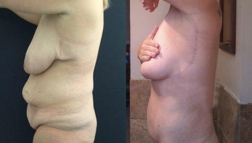 breast lift colombia 389-2-min