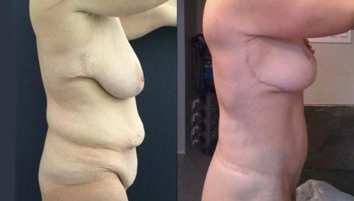 breast lift colombia 389-3-min
