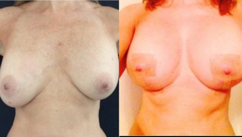 breast revision colombia 236 - 1