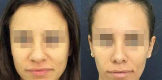 buccal fat pad excision Colombia 212 - 1-min