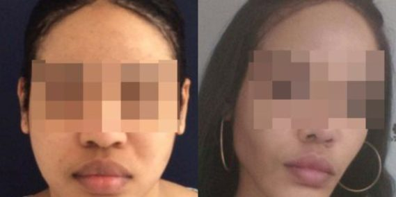 buccal fat pad excision Colombia 267 - 2-min