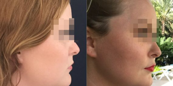 buccal fat pad excision Colombia 333 - 3-min