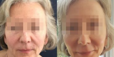 facelift colombia 208 - 1-min
