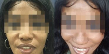 facelift colombia 211 - 1-min