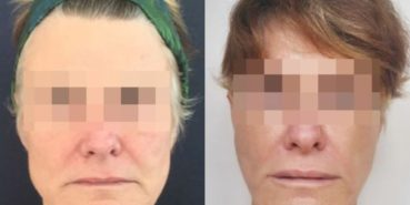 facelift colombia 226 - 1-min