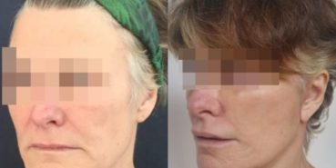 facelift colombia 226 - 2-min