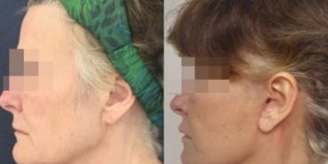 facelift colombia 226 - 3-min