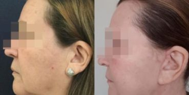 facelift colombia 230 - 2-min
